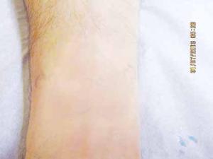 Après 4 traitements