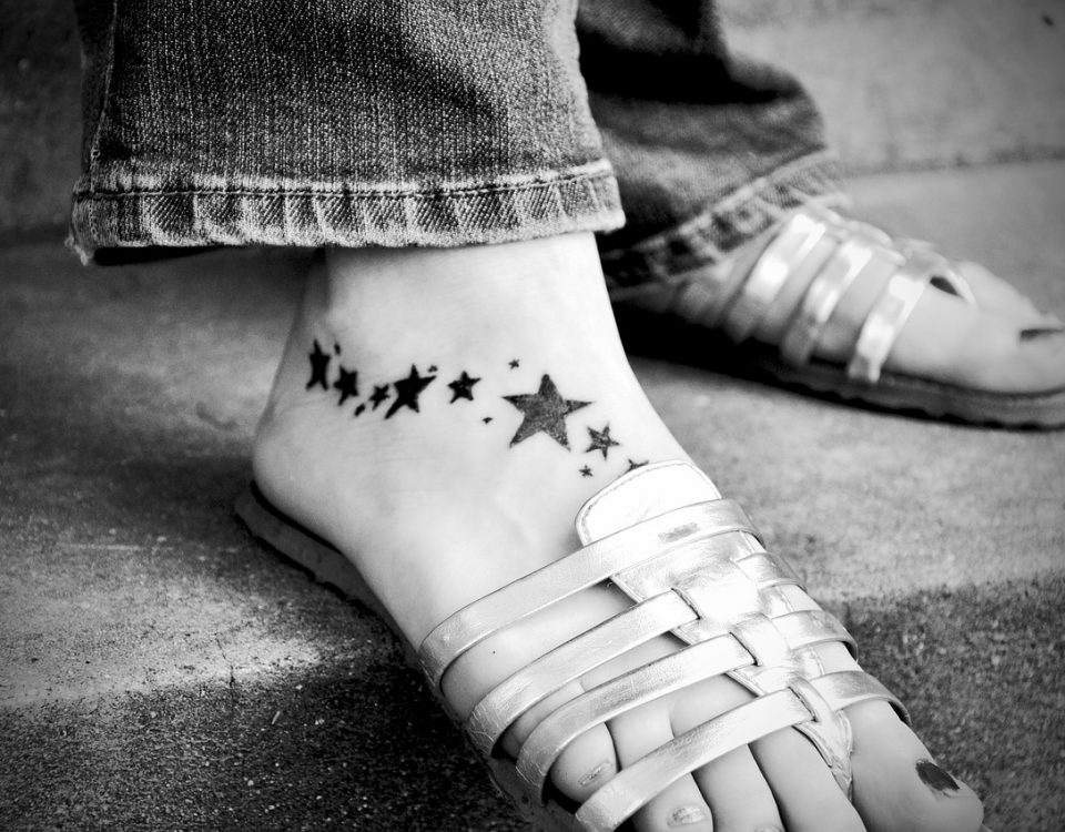 Enlèvement de tatouage